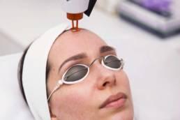 Nurse performs Laser Facial on client